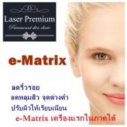 E-matrix เทคโนโลยีรักษาหลุมสิว แห่งแรกในภาคใต้