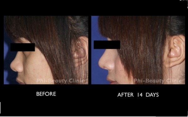 phi beauty clinic
